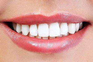 Teeth Whitening – an Incredible Look That's Effective and Safe